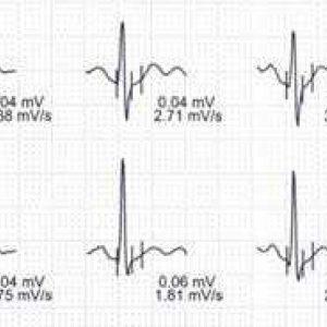 Belastungselektrokardiogramm