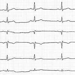 Elektrokardiogramm
